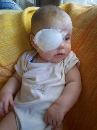 Cam first surgery